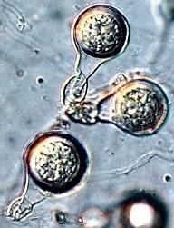 kauri-dieback-phytophthora-agathidisidia